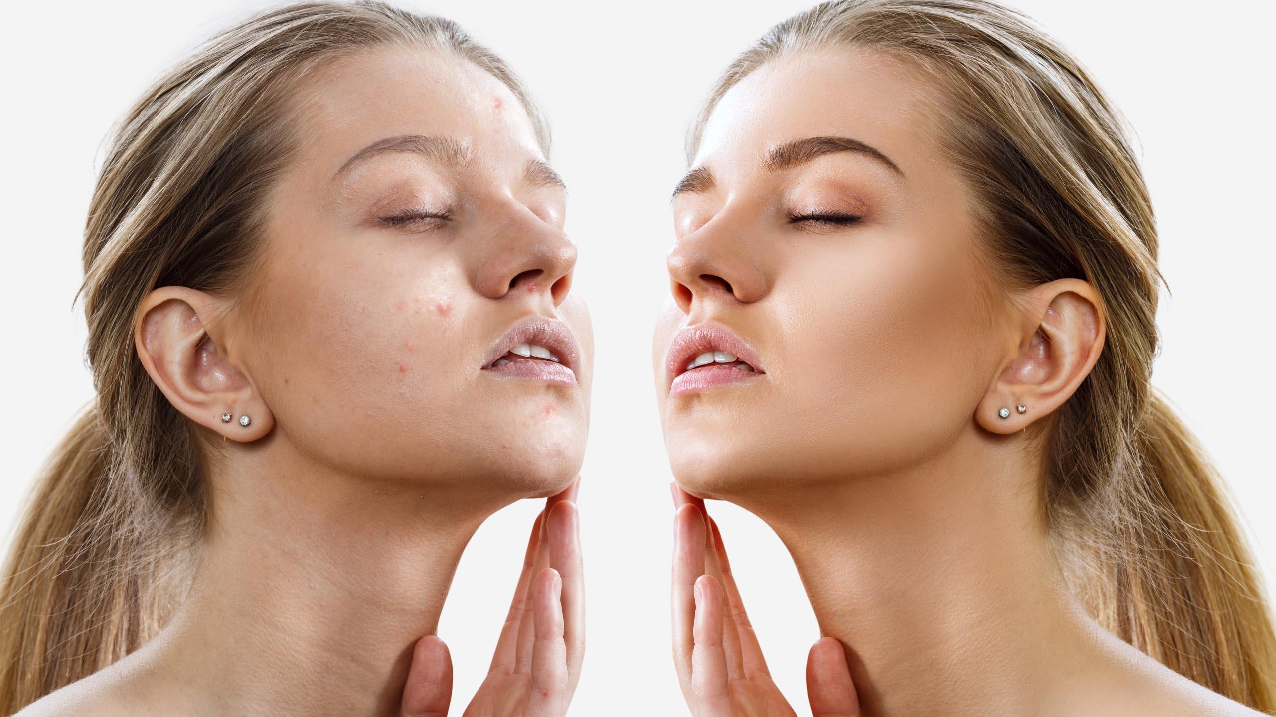 Acne Treatment Exeter