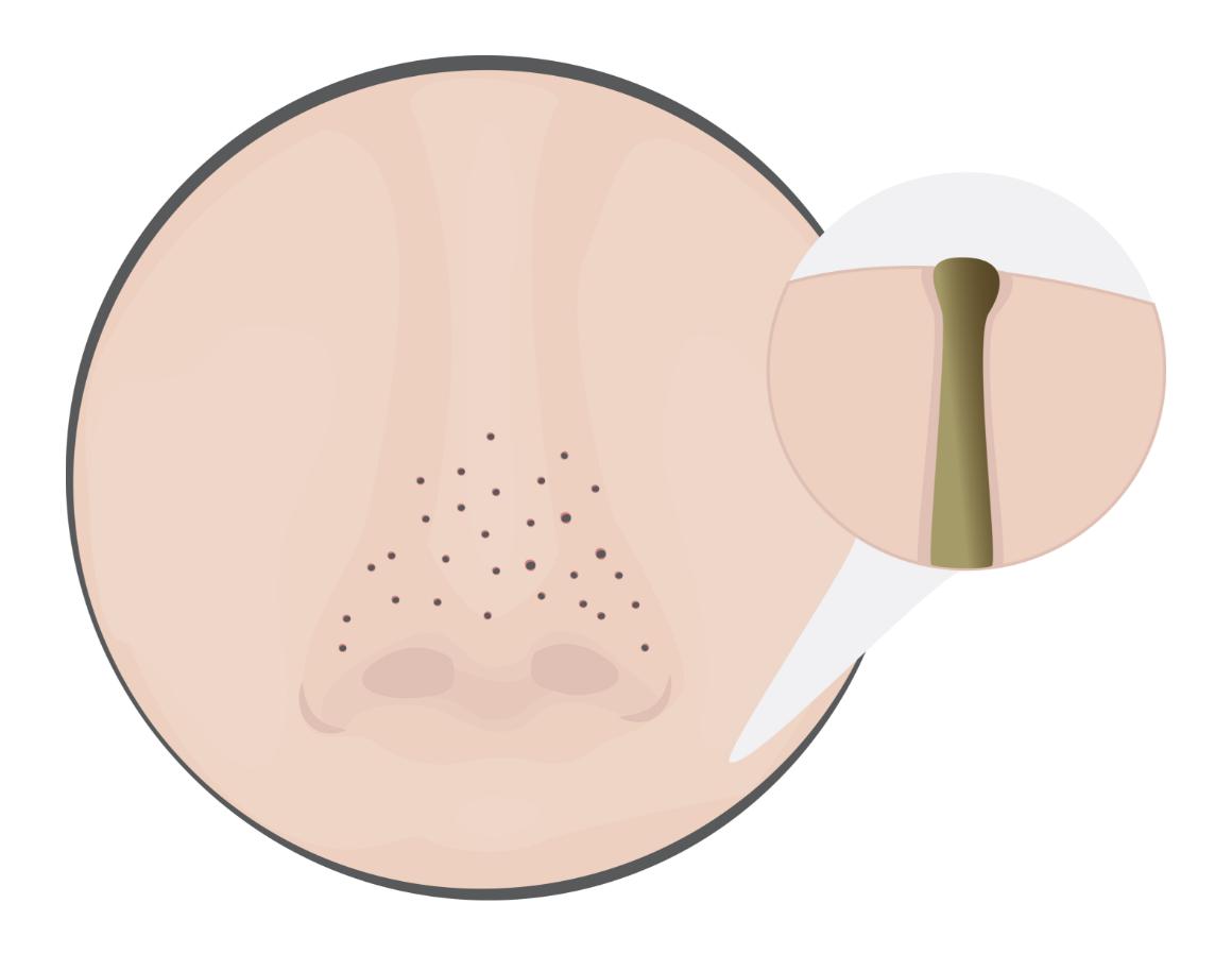Open Pores Blackheads Treatment