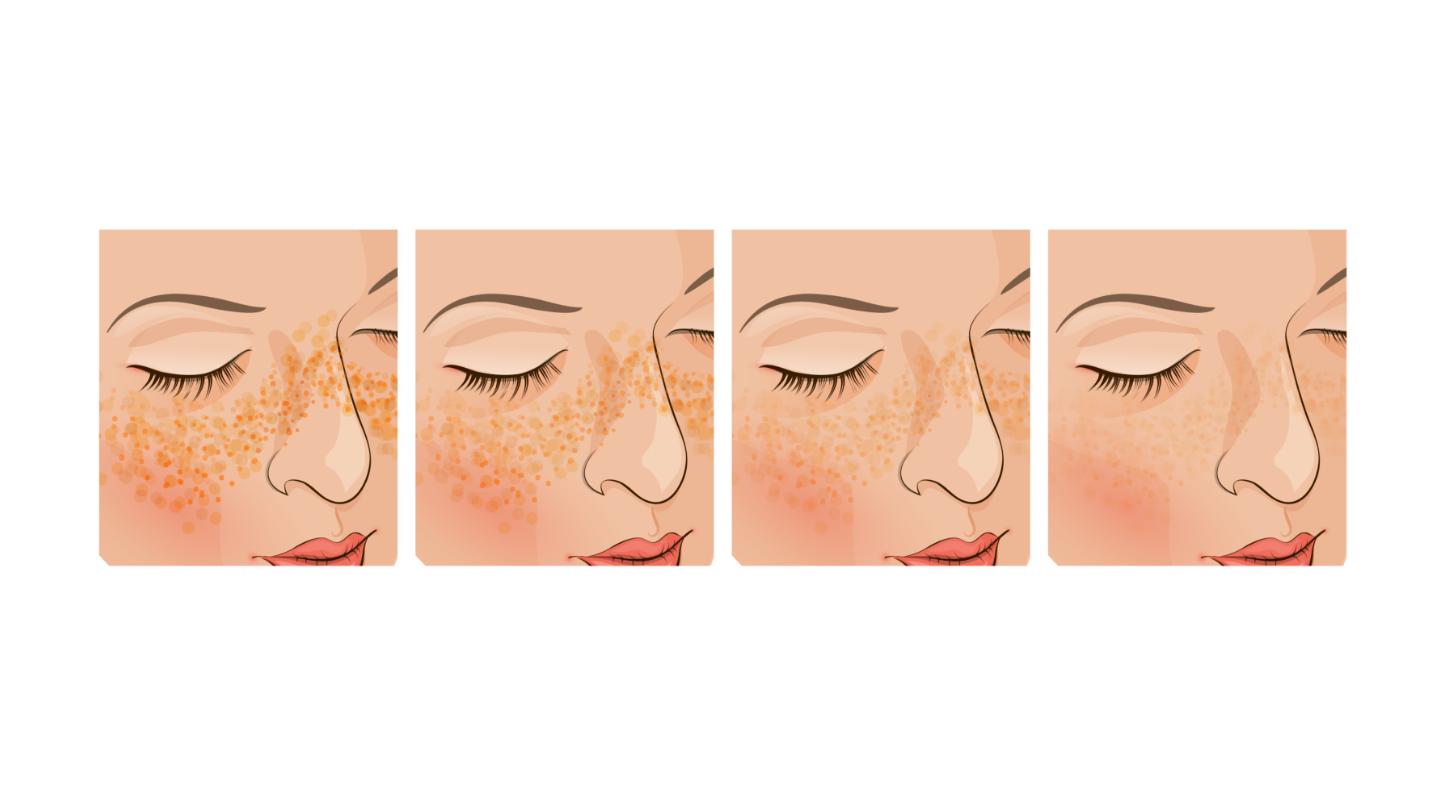 Pigmentation Skin Care Aesthetics