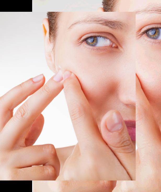 Skin Care Acne Treatment